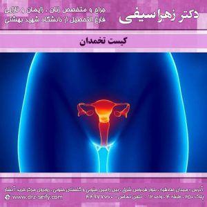 کیست-تخمدان-1