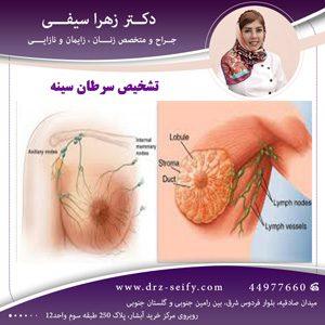 تشخیص سرطان سینه