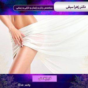لابیاپلاستی در تهران