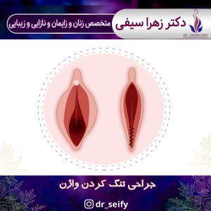 جراحی تنگ کردن واژن